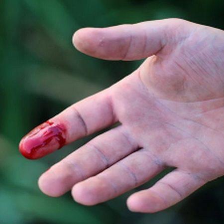 Giấc mơ thấy đứt tay chảy máu báo hiệu điềm gì? Đánh đề số mấy?