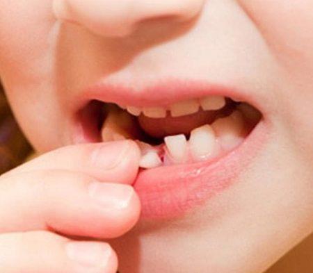 Giấc mơ thấy răng báo hiệu điềm gì? Đánh con gì dễ trúng?